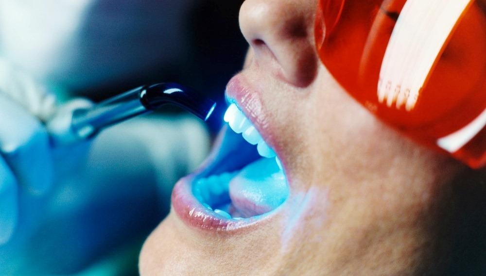 безопасно отбелить зубы дома