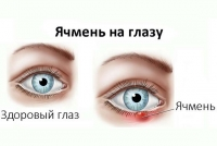 Ячмінь на оці: чому виникає, як лікувати?