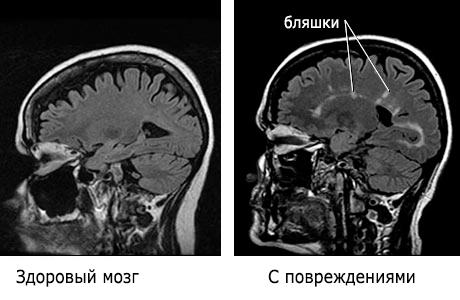 хронически рассеянный склероз
